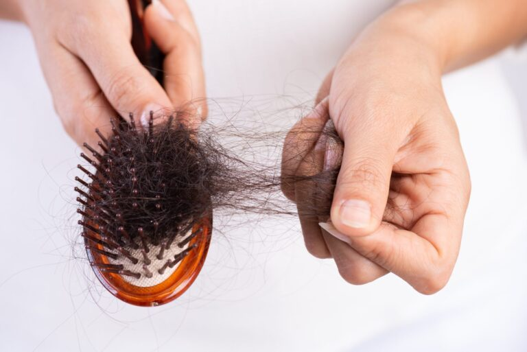 Hair Loss Is a Normal Part of Post-Pregnancy Life